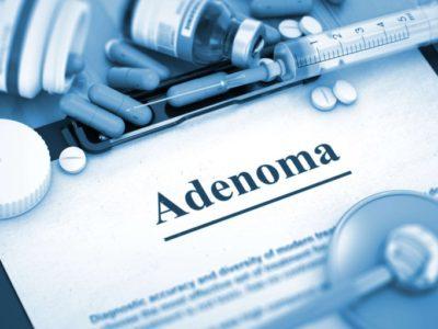 отзывы пациентов о том, как эффективно лечить аденому простаты