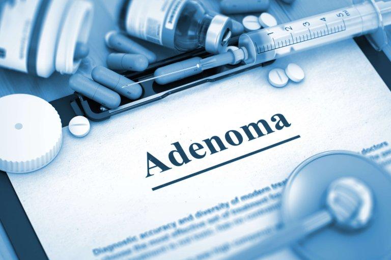 Эффективное лечение аденомы простаты: отзывы пациентов