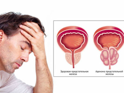 где в москве проводят лечение аденомы простаты