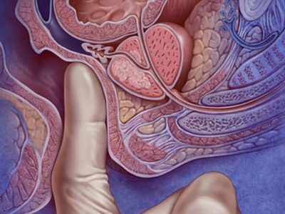 аденома простаты - операция