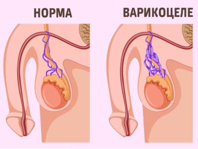 операция на яичке по удалению варикоцеле