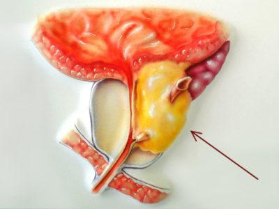 аденома простаты - рак
