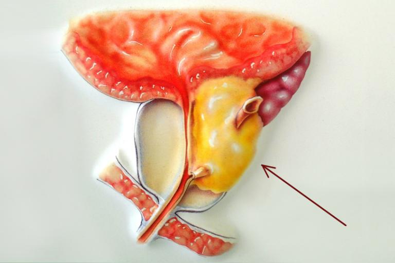 Рак аденомы простаты: симптомы, лечение, операция